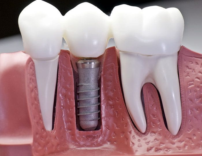 Dental Implant in Gurgaon