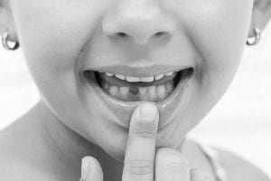 tooth extraction in gurgaon