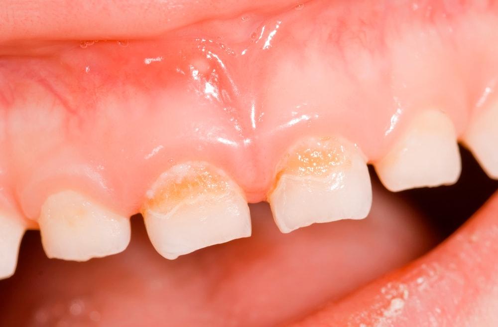 fluoride dentistry