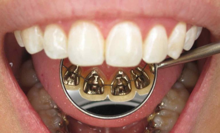 lingual braces in gurgaon