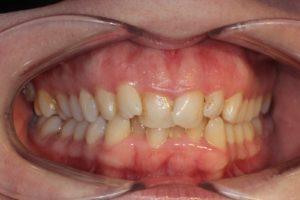 Invisible Braces in Gurgaon   Invisalign Cost in Gurgaon   Aspen Dentals