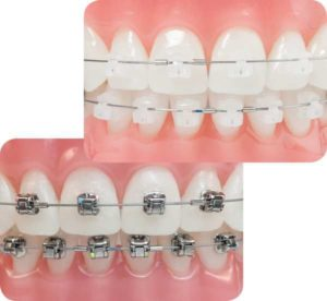 Sigma Self Ligating Braces