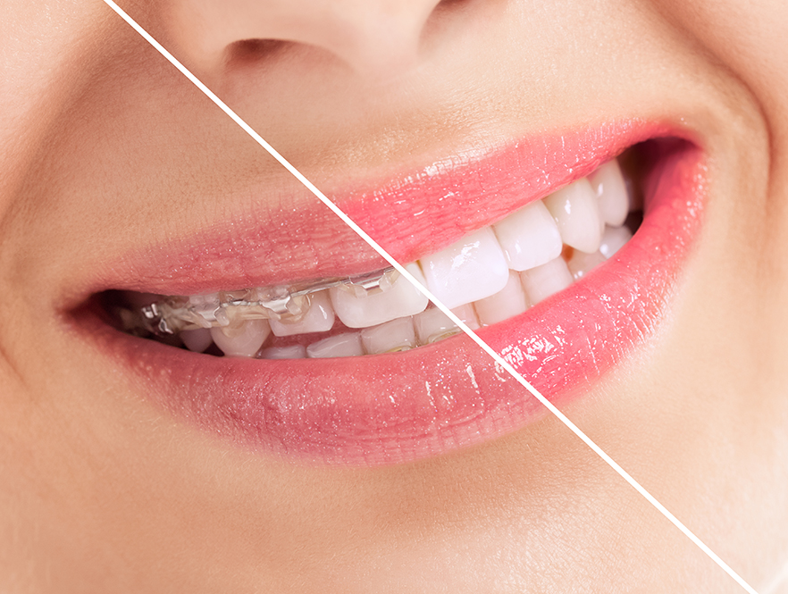 teeth adjustment treatment