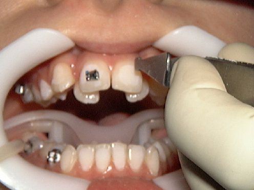 braces treatment in gurgaon
