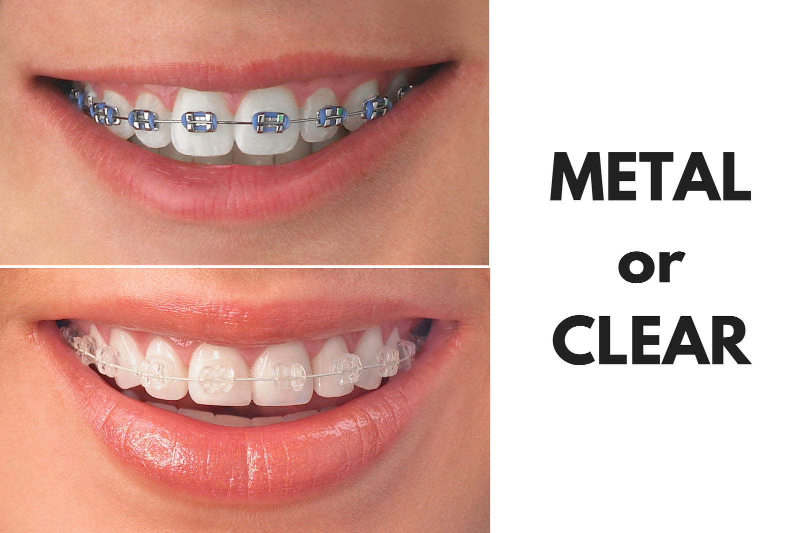 Metal or Clear Braces in Gurgaon