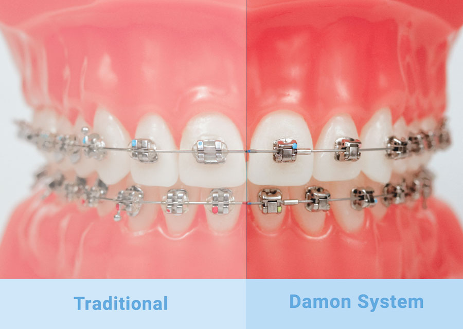 Traditional vs Damon System Braces
