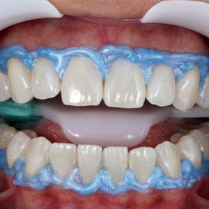 dam around the gums